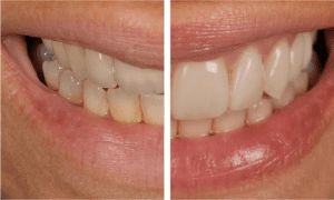 veneers compare before and after