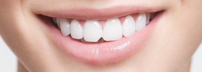 can teeth repair themselves